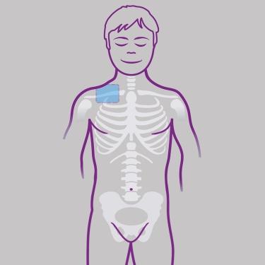 dolor hombro clavicula izquierda